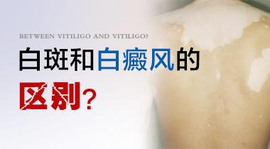 云南治疗白癜风专科医院:如何准确诊断白癜风